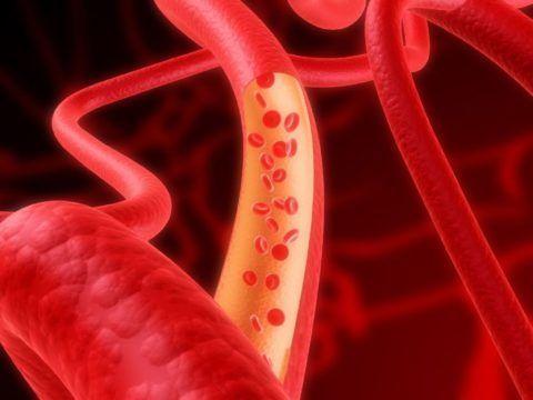 Длительное нарушение кровоснабжения очень опасно