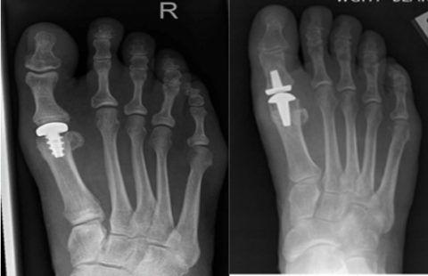 Эндопротез плюснефалангового сустава на рентгенограмме