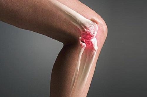 Синовит коленного сустава: как вылечить болезнь без операции и сильнодействующих лекарств