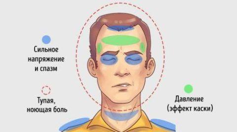 Головная боль напряжения – частая «спутница» шейных грыж