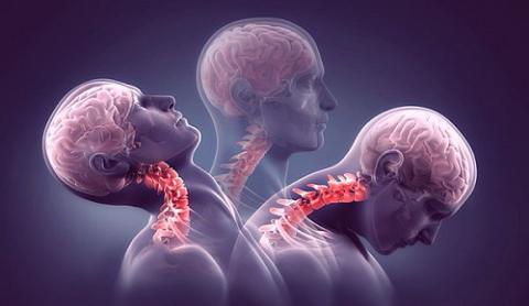 ЛФК – главный метод, позволяющий остановить прогрессирование заболевания