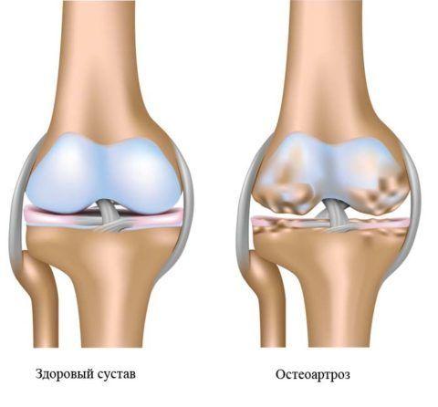 Остеоартроз – одна из причин, почему болят суставы рук