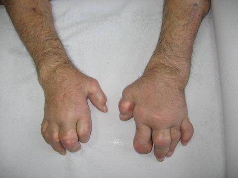 Пальцы стали деформированными. на них хорошо заметны т.н. подагрические узелки