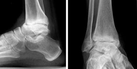 Рентгенограмма голеностопа, таранной кости и подтаранного сустава при артрозе
