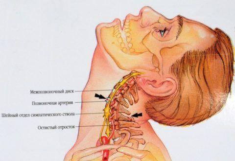 Защемляться могут нервы, сосуды, в тяжелых случаях спинной мозг