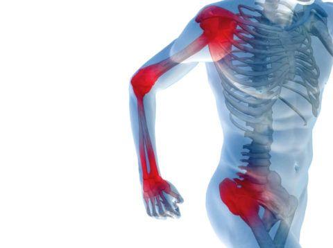 Жгучая и невыносимая боль в суставах