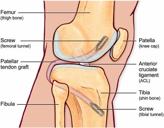 Пластика ЗКС трансплантатом из собственной связки надколенника