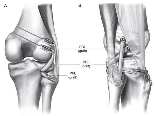 Способ хирургической фиксации наружной коллатеральной связки сустава