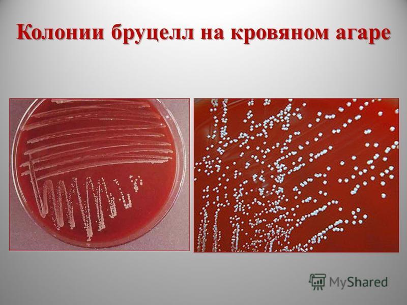 Бруцеллезный коксит развивается редко вследствие зоонозной инфекции.