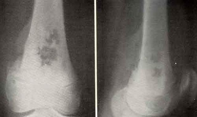 Остеосаркома колена поражает костные ткани и характеризуется интенсивным ростом.