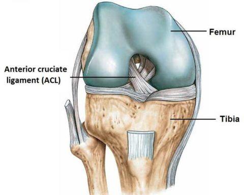 ACL-передняя крестообразная связка. За ней видна – задняя крестообразная связка