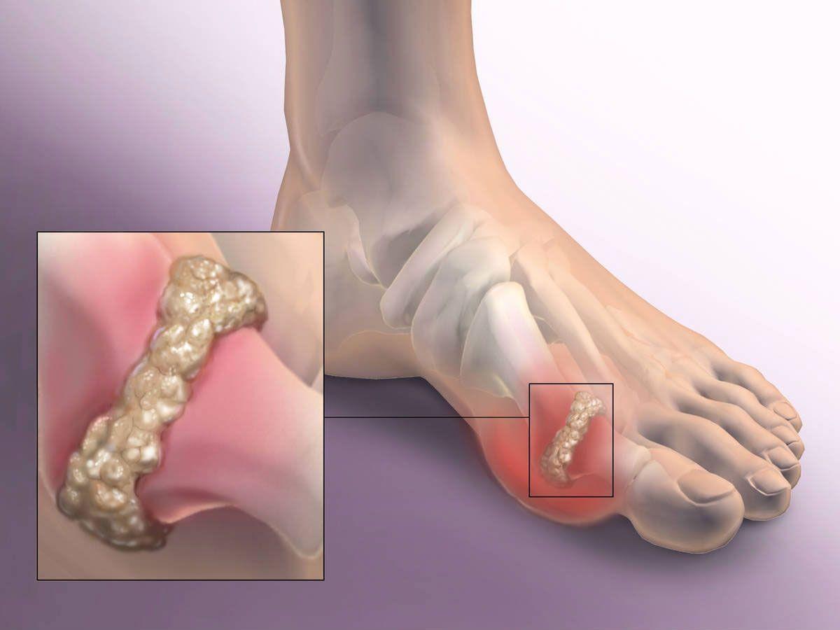 Артроз суставов стопы: преодоление болезни