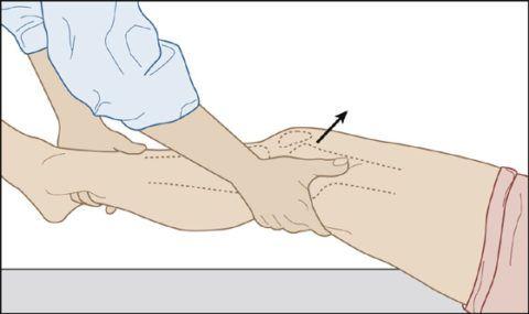 Диагностика повреждения коллатеральных связок