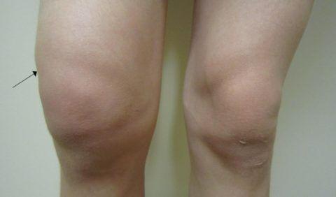 Для онкологии колена характерны изменения формы сочленения и его болезненность.