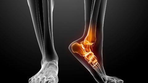 Трещина в колено при ушибе симптомы