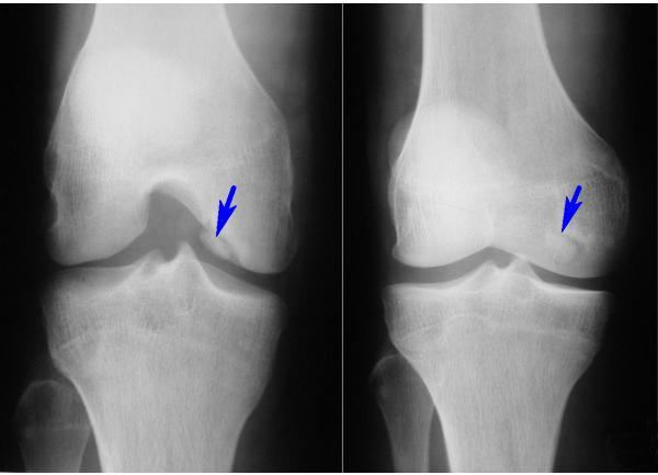 Шипы в коленном суставе: причины, симптомы, современные методы лечения и профилактики