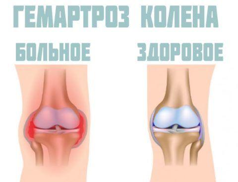 Гемартроз сустава (справа на картинке) – одно из возможных осложнений