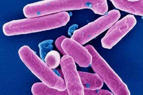 Иногда воспаление тазобедренных сочленений могут быть следствием дезинтерии.