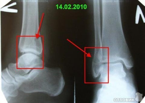 Интенсивность болезненности при травме ноги (голеностопа) зависит от размера повреждения костных тканей.