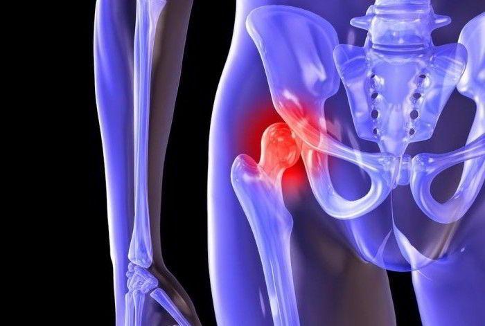 Артроз тазобедренного сустава 2 степени: лечение патологии и особенности реабилитации