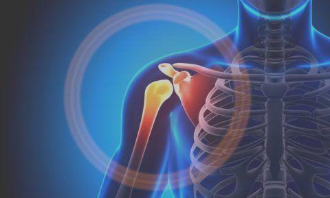 Лечение заболеваний плечевого сочленения направлено на причину недуга и устранение негативной симптоматики.