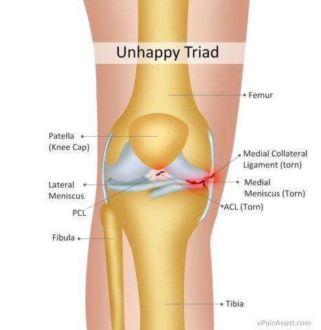 На рисунке показаны зоны повреждения при так называемой несчастливой триаде