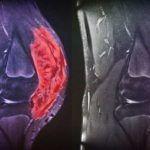 Опухоль колена часто имеет вторичный характер.