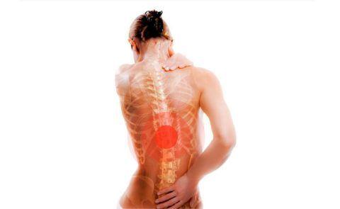 Остеопороз со временем приводит к искривлению позвоночника