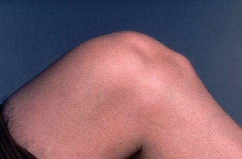 Подколенная шишка может остаться на всю жизнь и потребовать пластической коррекции