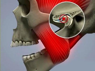 Пощелкивать челюсть может при изменениях в ее соединениях после травмы.
