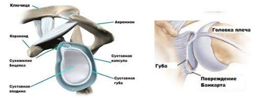 Повреждение Банкарта плечевого сустава: симптомы, причины, методы лечения и реабилитации