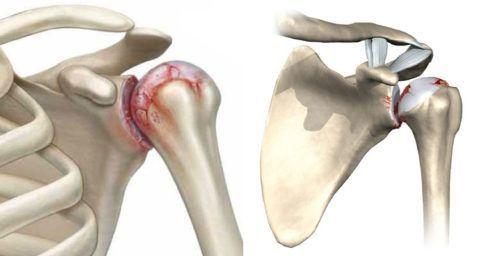 При дегенеративно-дистрофических изменениях в плече, основная терапия направлена на приостановление разрушения суставных тканей.