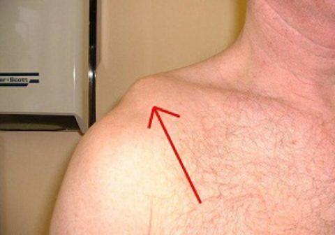 При опухолях в месте плеча проблема устраняется хирургическим путем.