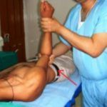 При осмотре врач оценивает состояние травмированного плечевого сустава.