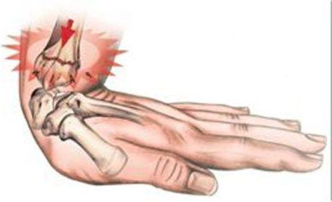 При повреждениях в лучезапястном соединении интенсивность боли в состоянии покоя незначительная.