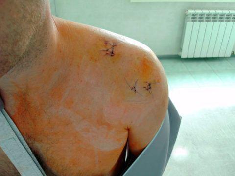 При ушибе плеча с повреждением сухожилий необходимо проведение хирургического вмешательства.
