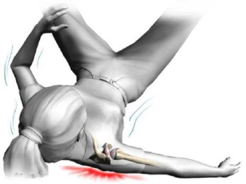 При ушибе плечевого сустава происходит повреждение мягких тканей и связок.
