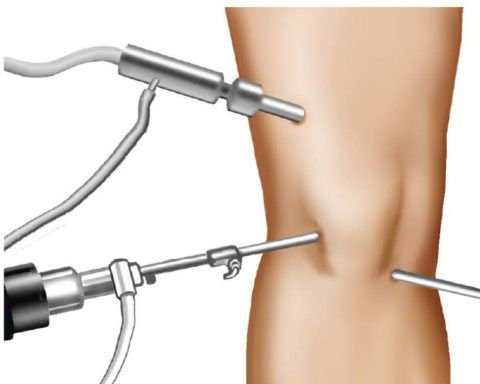 Пример расположения инструментов во время операции