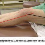 Разработка конечности поможет улучшить состояние колена при контрактуре.