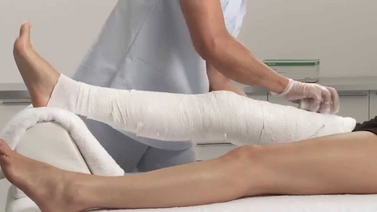 Разработка коленного сустава: правила и методики восстановления подвижности конечности, комплексы упражнений ЛФК