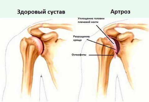 Щелчки в плече могут возникать при артрозе.