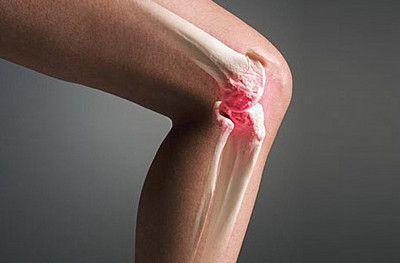 Щелкать колени могут при чрезмерной ежедневной нагрузке.