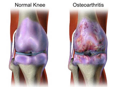 Слева – нормальное колено, справа – пораженное остеоартрозом
