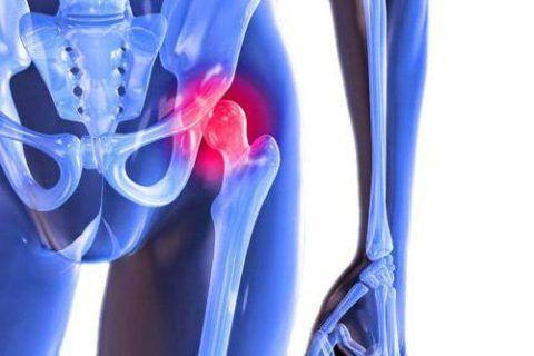 Воспаление в области вертлужной впадины и головки бедренной кости известно, как коксит.