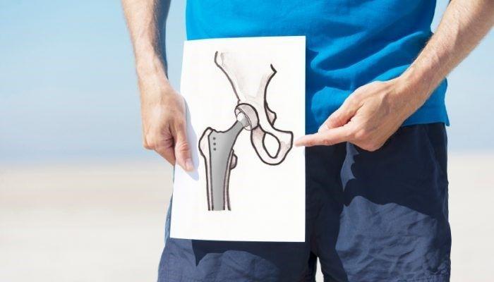 Восстановление суставов: современные методы стимуляции регенеративных процессов, виды медикаментов и оперативных вмешательств