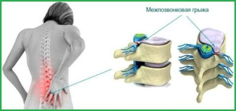 Грыжа между позвонками спины – довольно серьезное заболевание, поэтому перед использованием для ее лечения любых средств необходимо проконсультироваться с врачом.