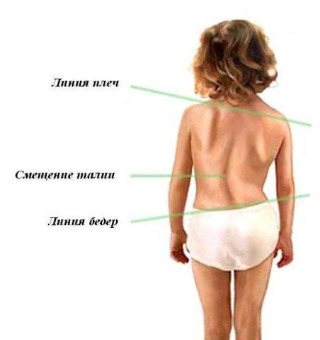 Кривая спина у ребенка