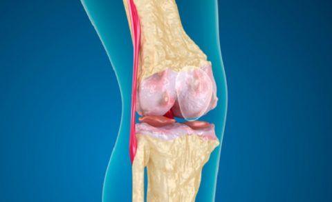 Износ суставов колен лечение - Лечение Суставов