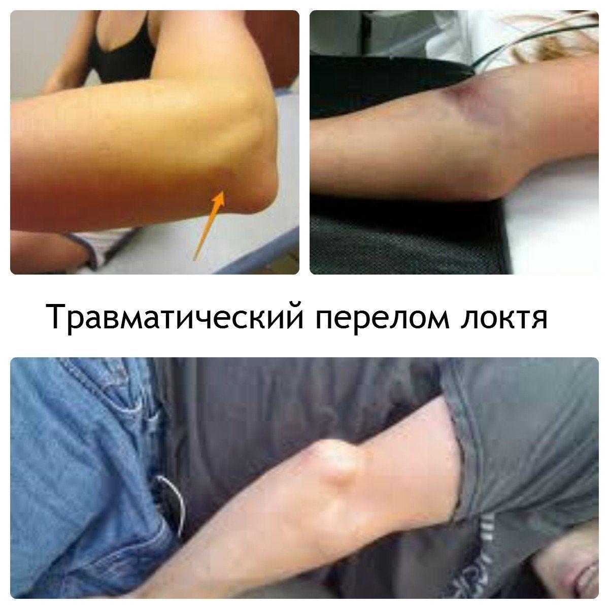 Внутрисуставной перелом, характеристики травмы, симптомы и помощь