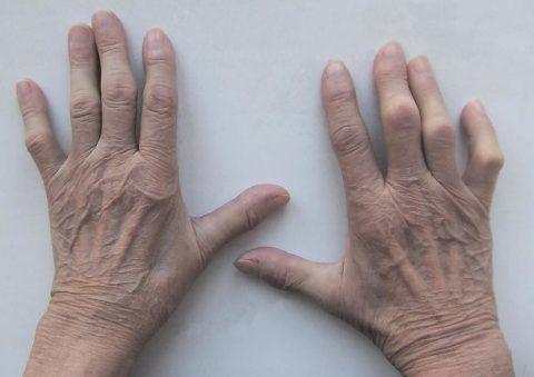 На фото руки пациента с воспалительным процессом в суставной части фаланг.